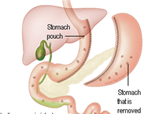 Laparoscopic Sleeve Gastrectomy in Delhi