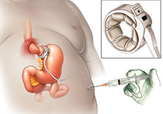 Laparoscopic adjustable gastric banding (LAGB) in Delhi
